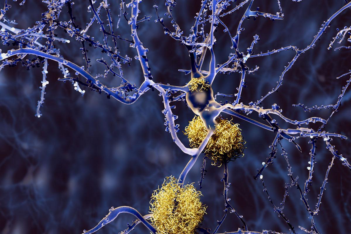 Alzheimer: Amyloid-Plaques an den Nervenzellen