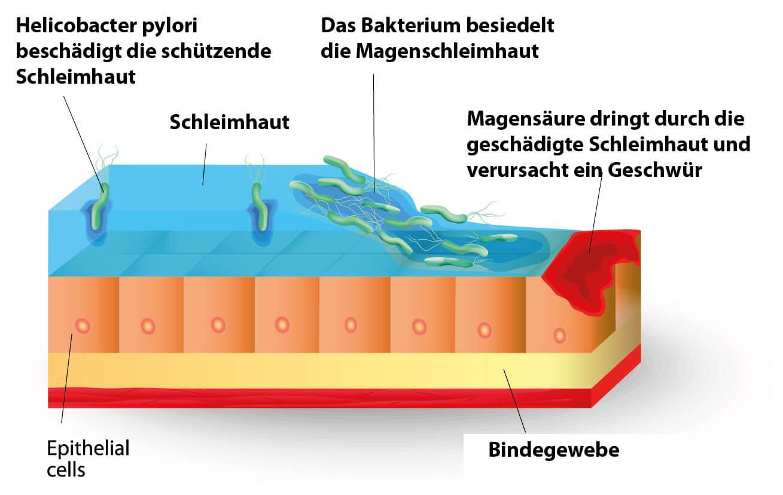Entstehung eines Magengeschwürs durch Helicobacter Pylori