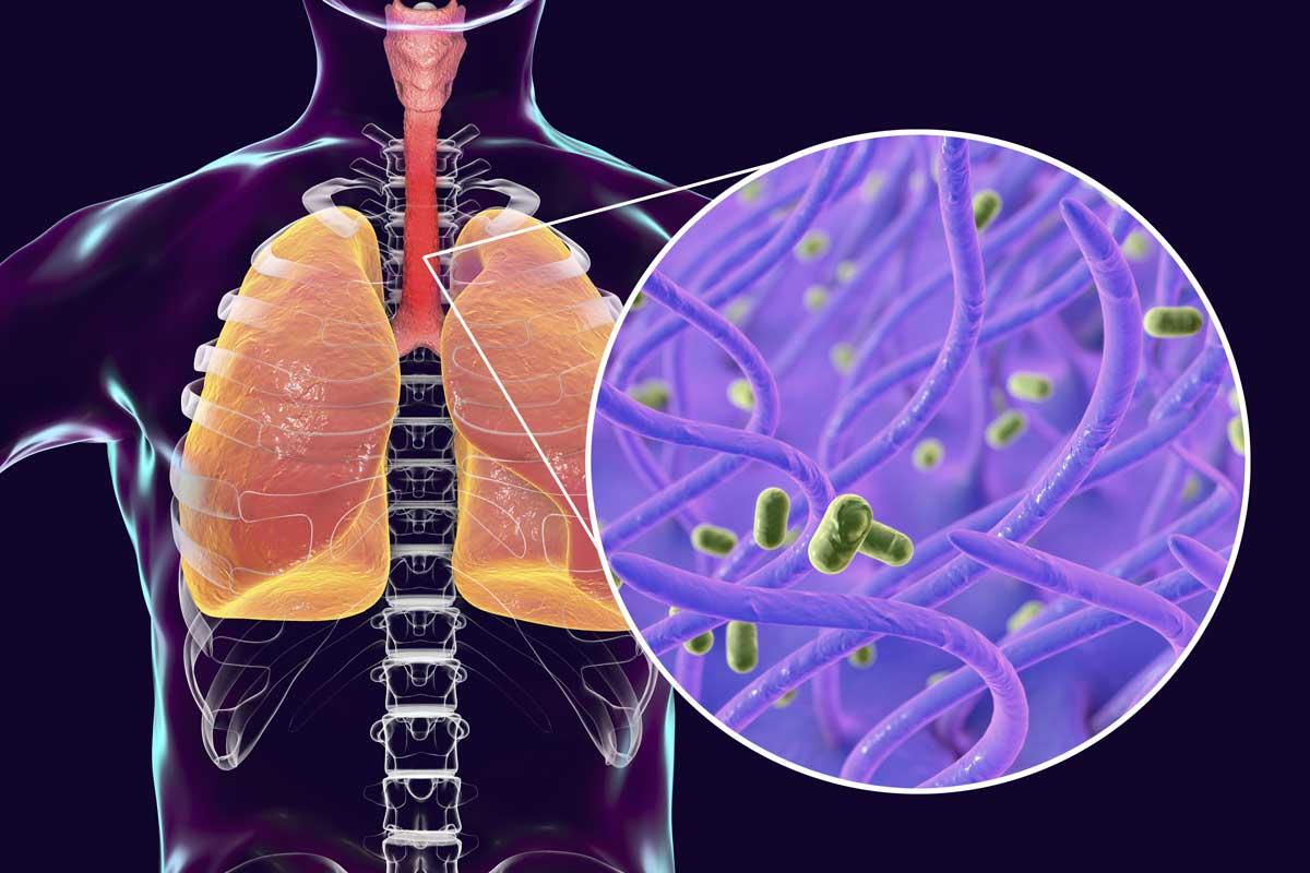 Keuchhusten wird vom Bakterium Bordetella pertussis ausgelöst