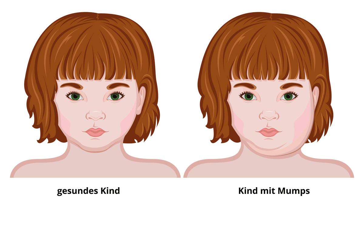 Typische Gesichtsschwellung durch Mumps (Abb.: Scio21 | Shutterstock)