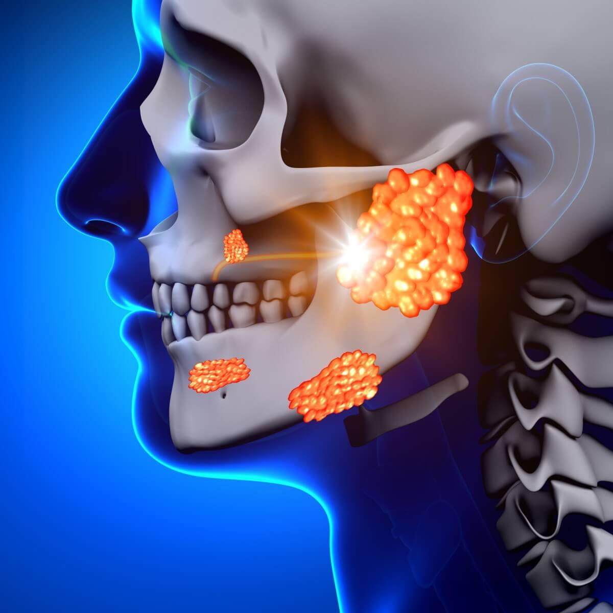 Klassisches Mumps Symptome: Entzündung der Ohrspeicheldrüse