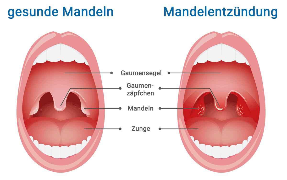 Mandelentzündung