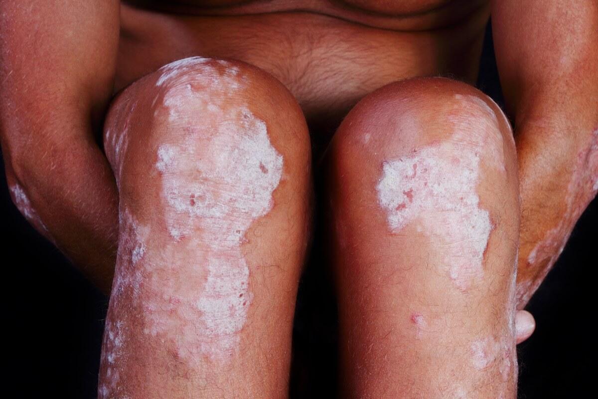 Schuppenflechte an den Beinen