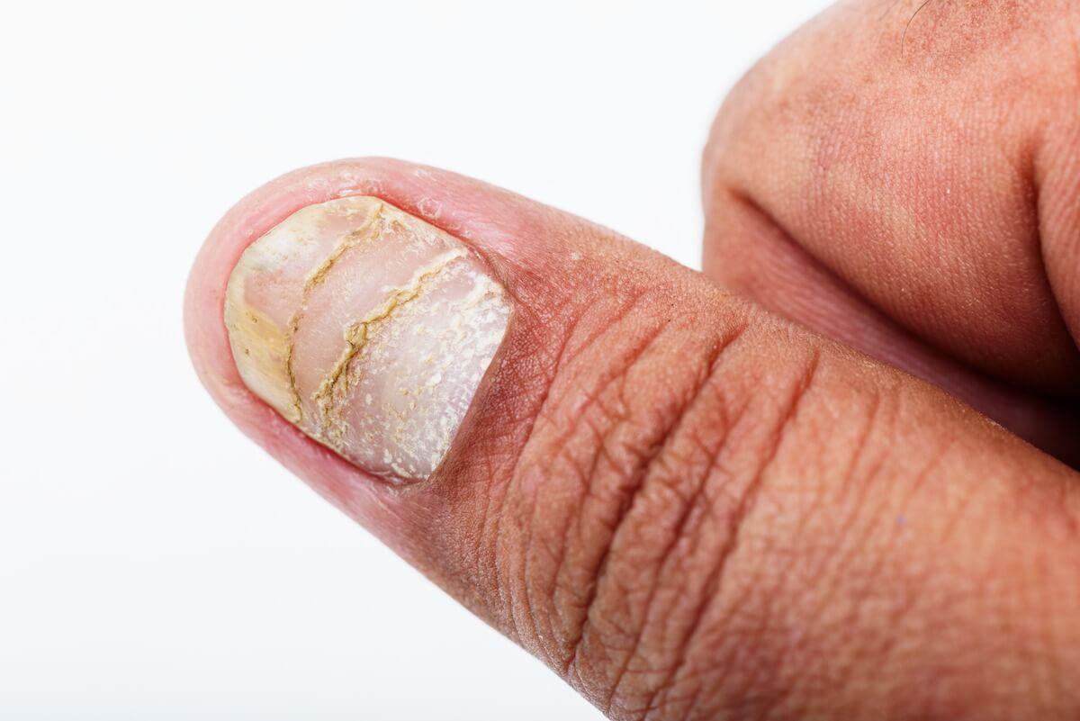 Schuppenflechte am Fingernagel