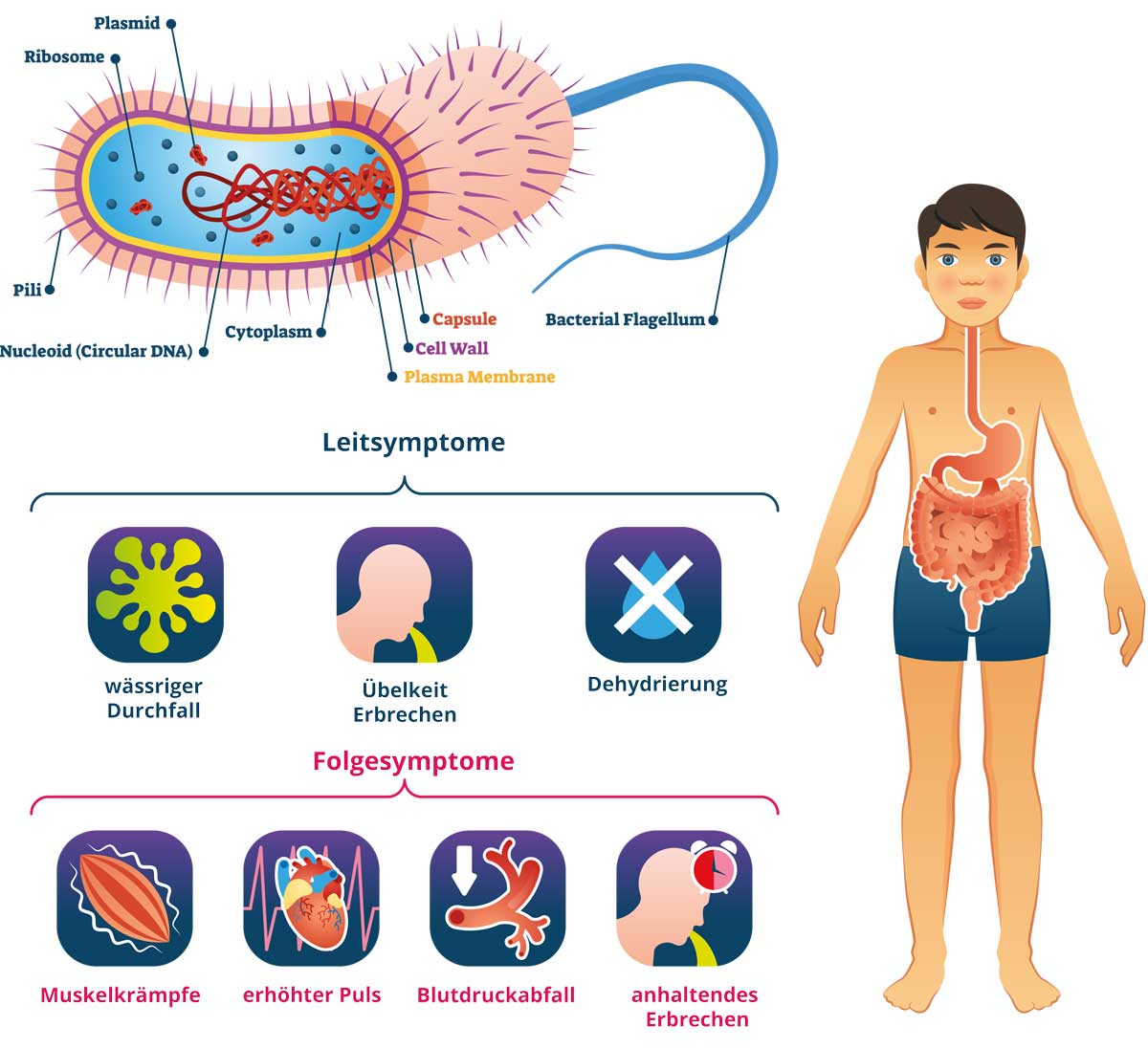Cholera Symptome