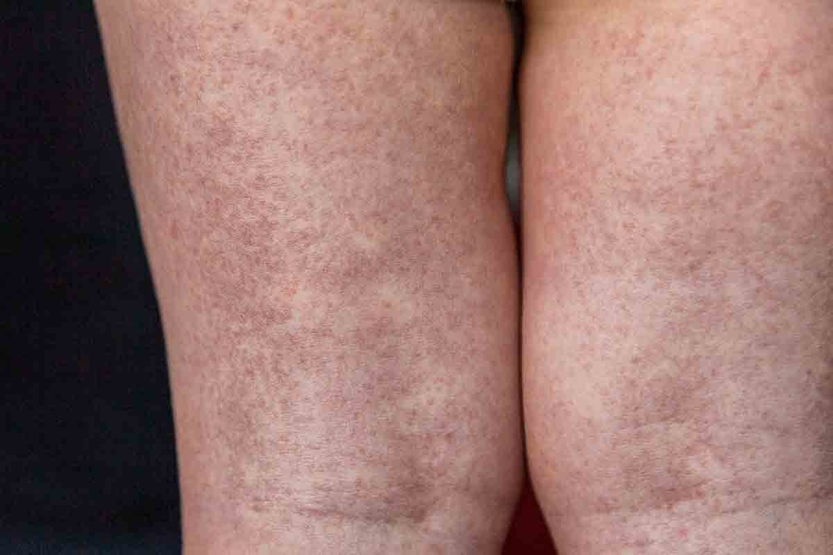 Scharlach: Ausschlag an den Beinen