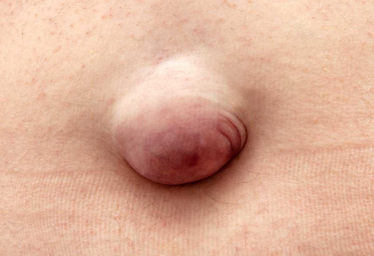 Bauchnabelbruch (Nabelhernie)