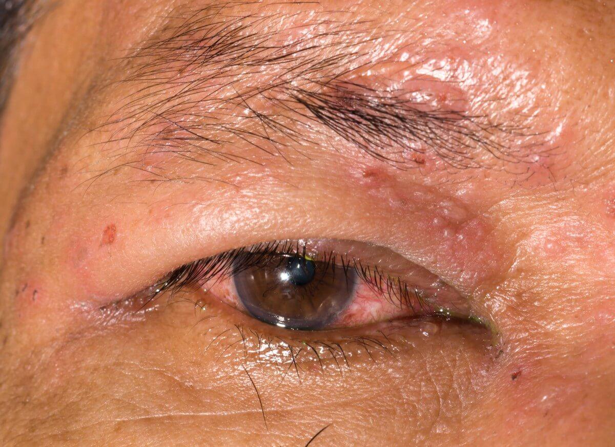 Gürtelrose im Gesicht mit Infektion der Augen