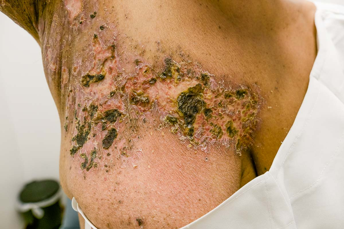 Gürtelrose / Herpes Zoster