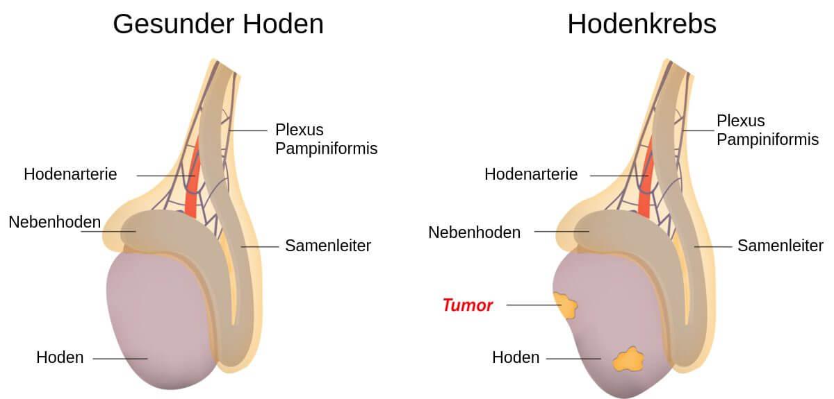 Hodenkrebs - Schematische Darstellung
