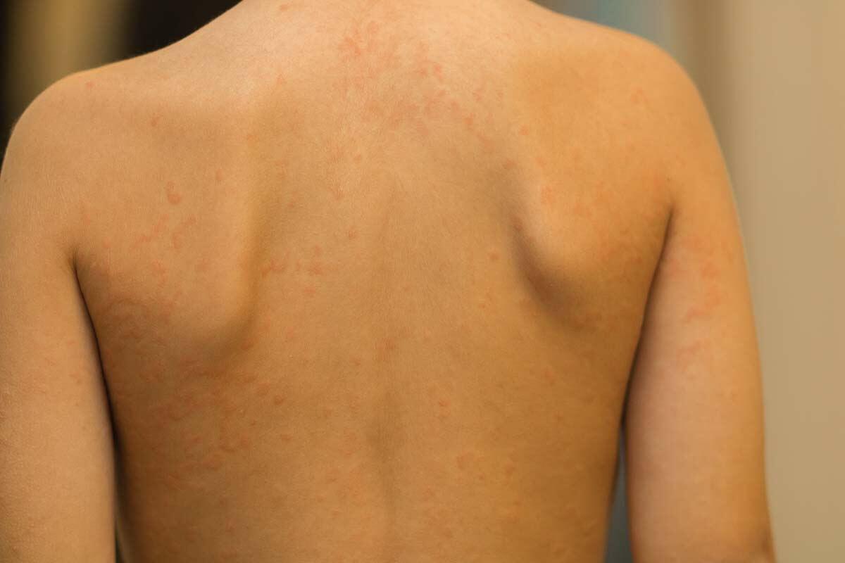 Masern-Ausschlag auf dem Rücken