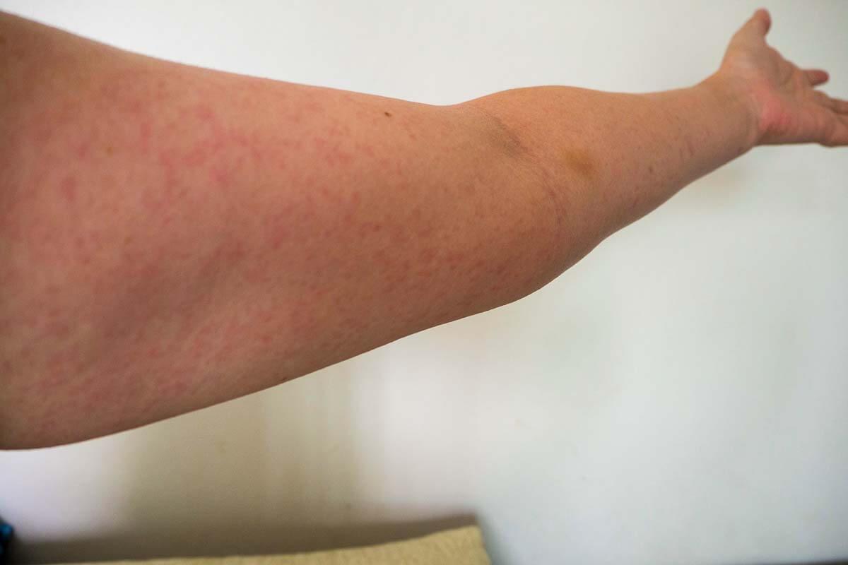 Röteln: Ausschlag am Arm