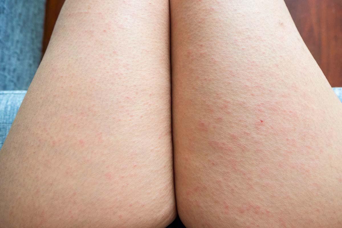 Röteln - Hautausschlag an den Beinen