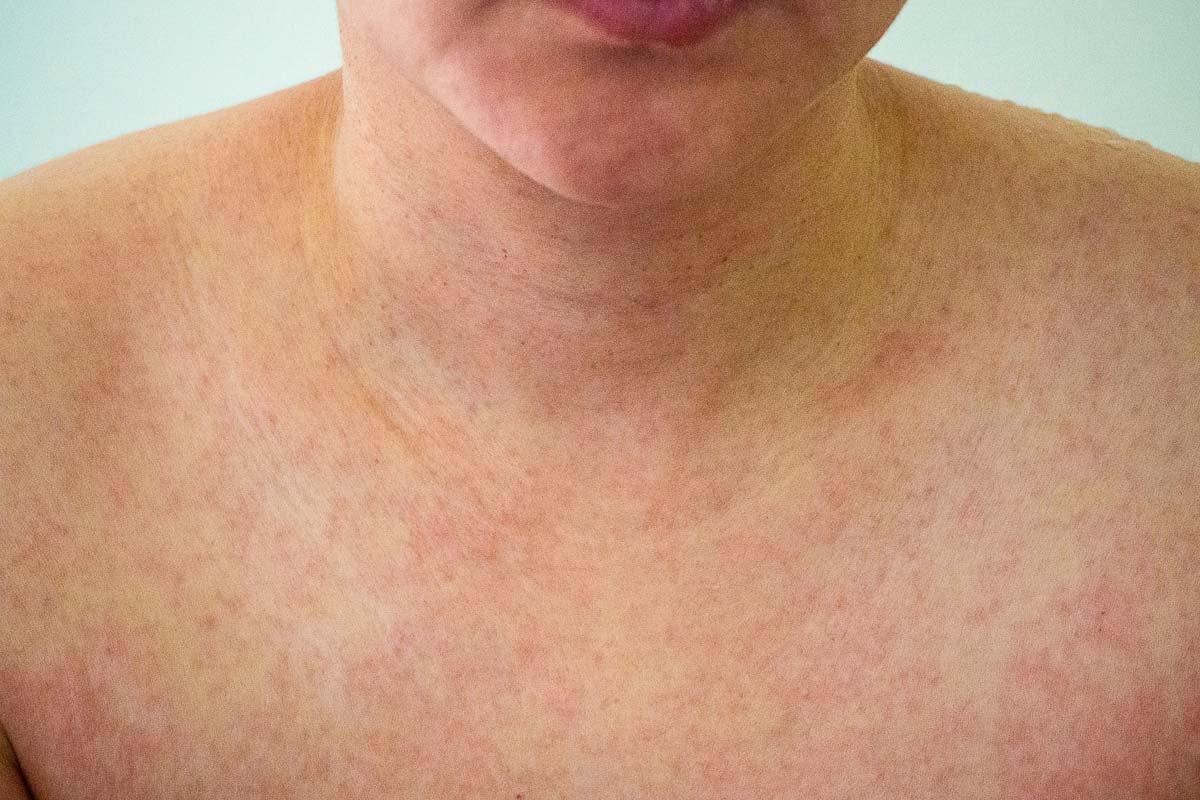 Hautausschlag einer Röteln-Infektion