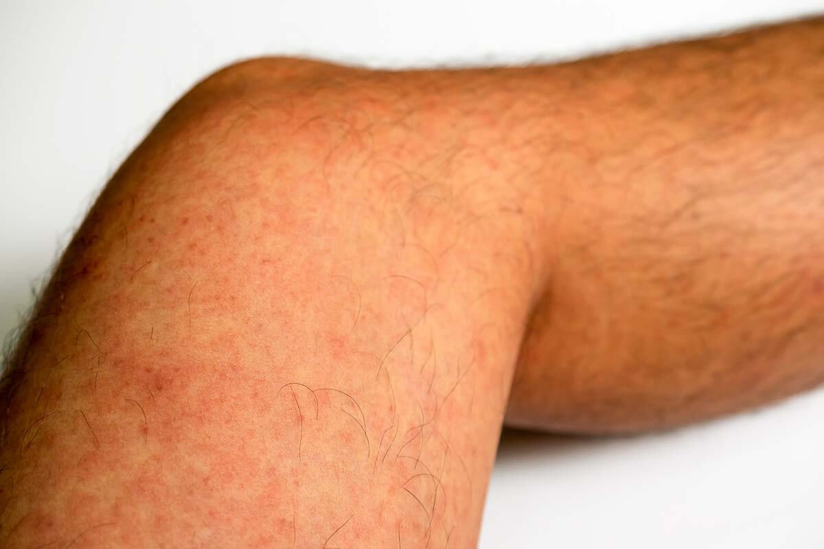 Röteln-Hautausschlag am Bein