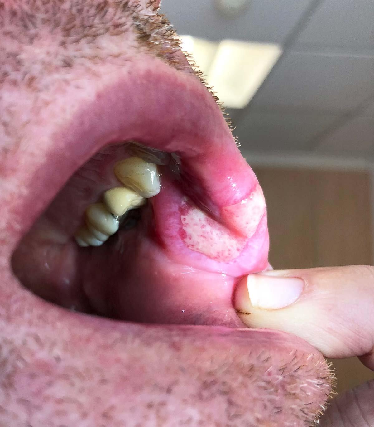 Syphilis: Läsion im Mundraum