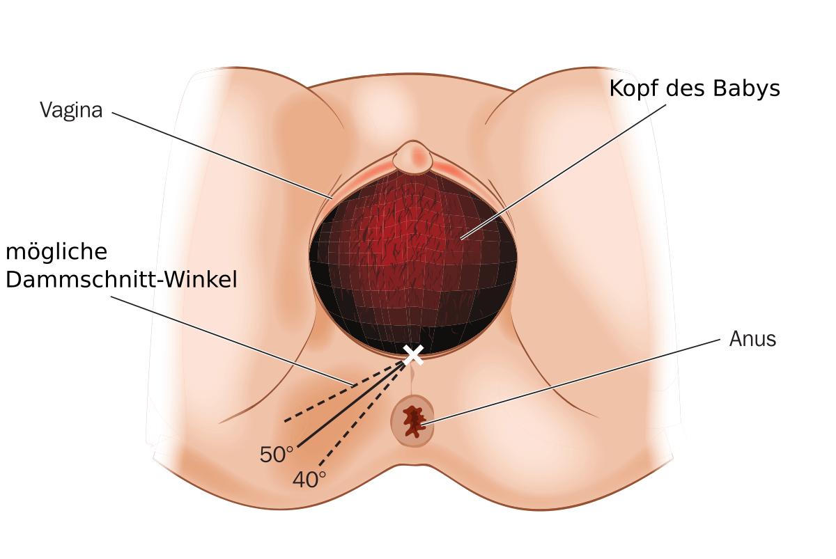 Dammschnitt - Schematische Darstellung