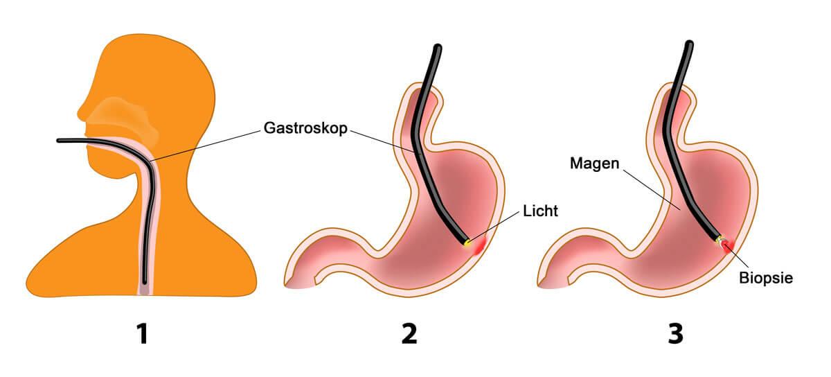 Magenspiegelung