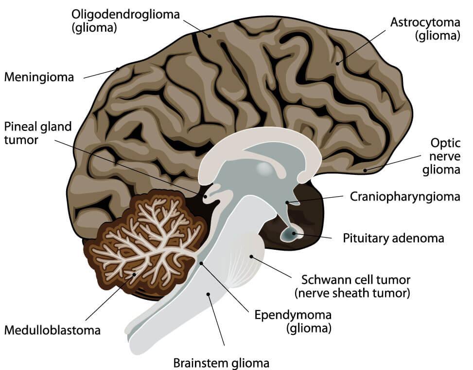 Typische Lokalisationen verschiedener Hirntumore