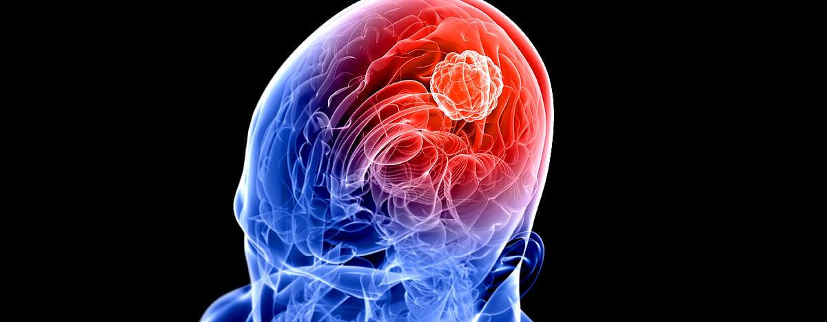 Hirntumor im menschlichen Schädel